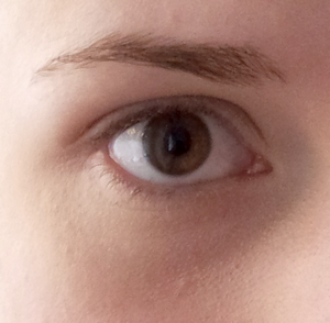 Zakrytý kruh pod okem